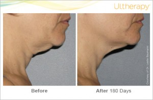 ultherapy-0026-0086w_beforeandafter_180day_1tx_neck2