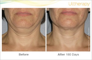 ultherapy_0026-0086w_beforeandafter_180day_1tx_neck1