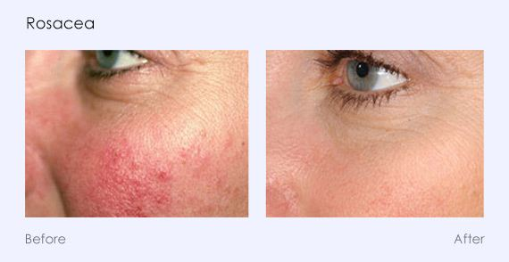 Buy one laser photofacial, receive 50% off your second